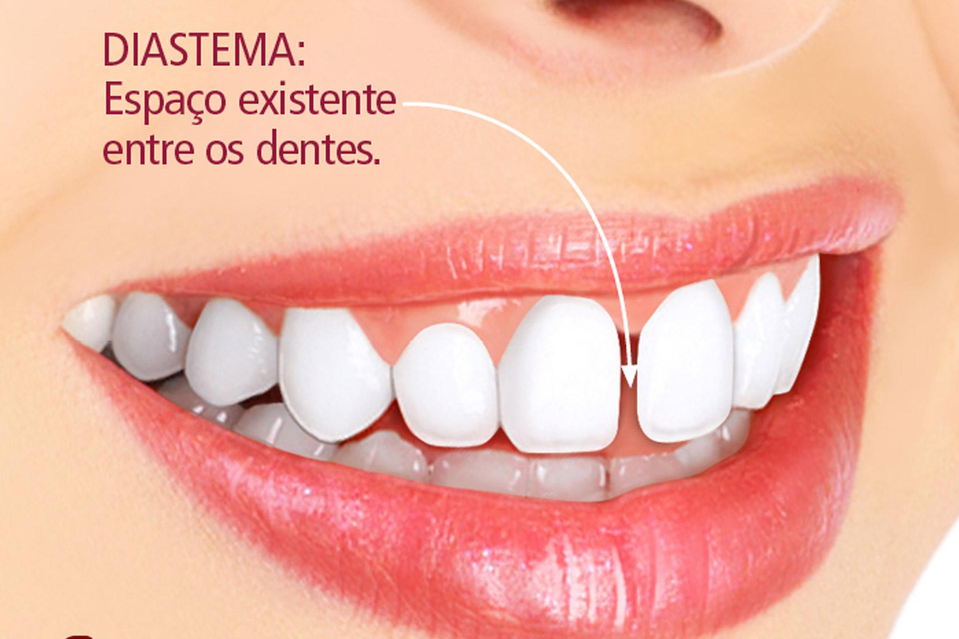 Diastema tem tratamento