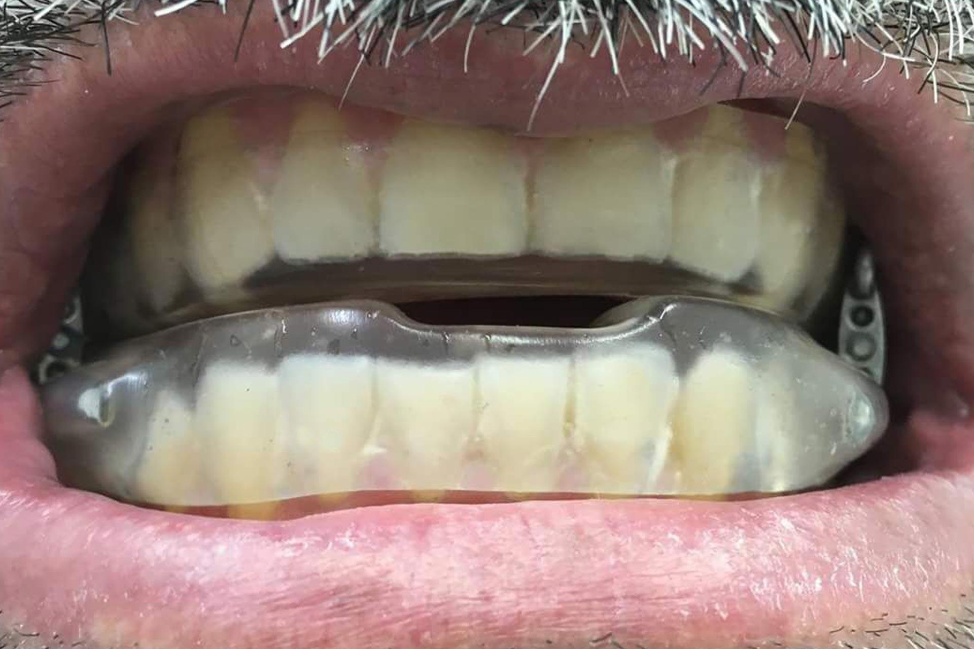Aparelhos intra-orais em muitos casos é a solução para o ronco ou apneia
