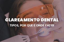 Tipos de clareamento dental: por que e onde fazer?