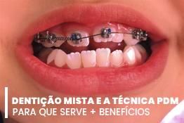 Dentição mista e aparelho fixo autoligado com técnica PDM
