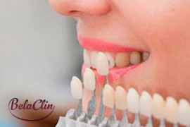 Lentes de contato dental SP