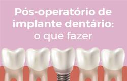 Pós-operatório de Implante dentário