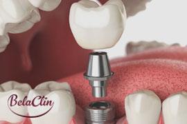Valor implante dentário