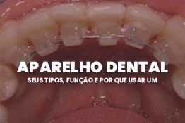 Aparelho dental: seus tipos, função e por que usar um