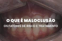 O que é Maloclusão, os fatores de risco e tratamento